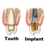 Dental Implant picture
