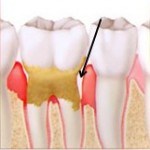 dental_gum_treatment