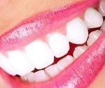 dental_veneers-150x126