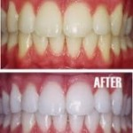 dental_whitening-150x150