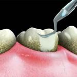 Dental Prophy