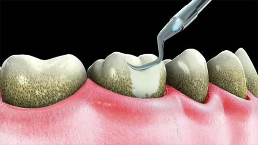 how to keep tartar off teeth