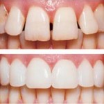 Dental possibilties teeth